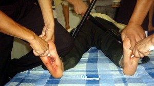torture foot